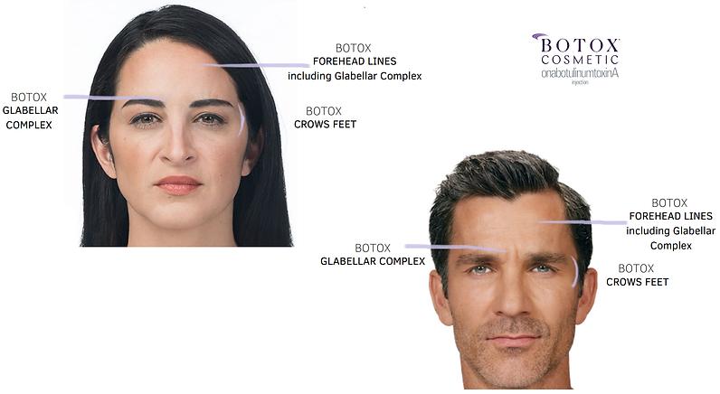 botox face.png