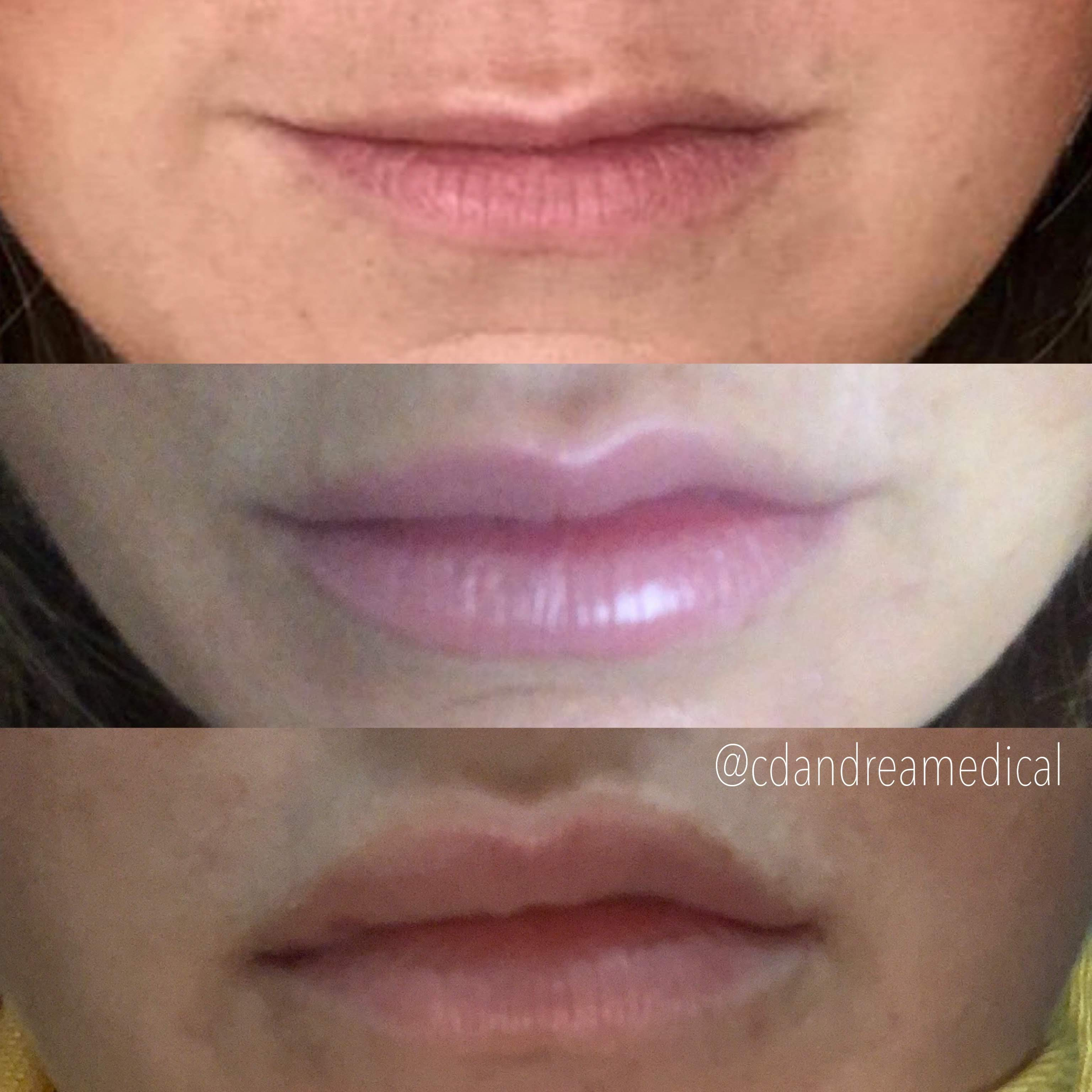 Lip fillers, two treatments