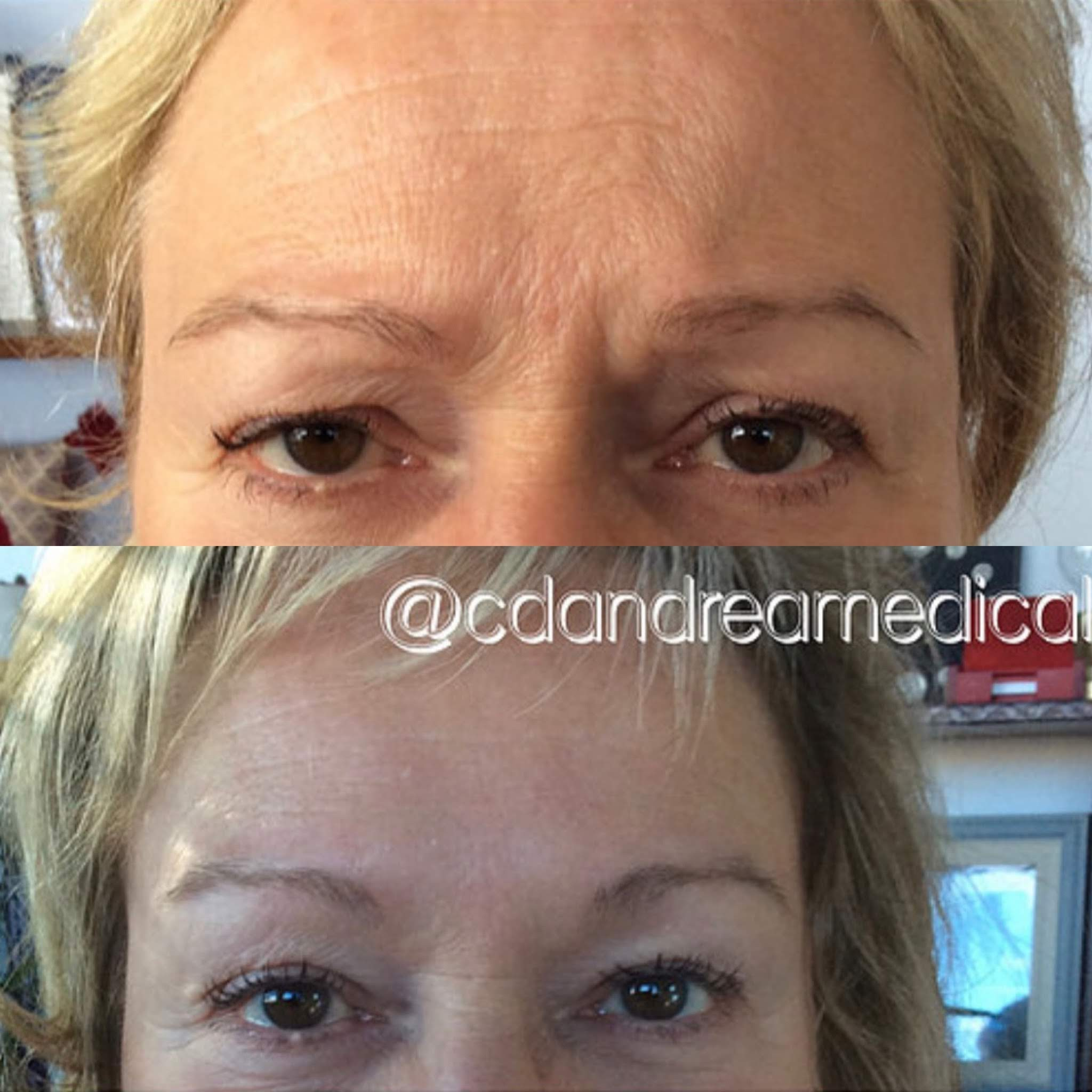 Botox, Forehead