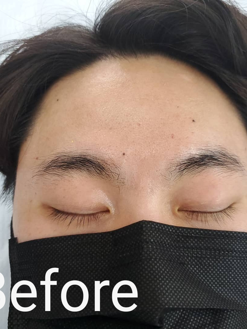 Male Brow Client