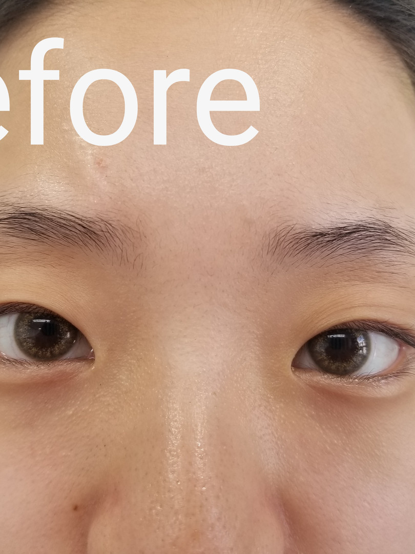 Brow Client Before