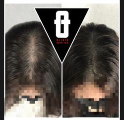 women-scalp-loss-micropigmentation-densi