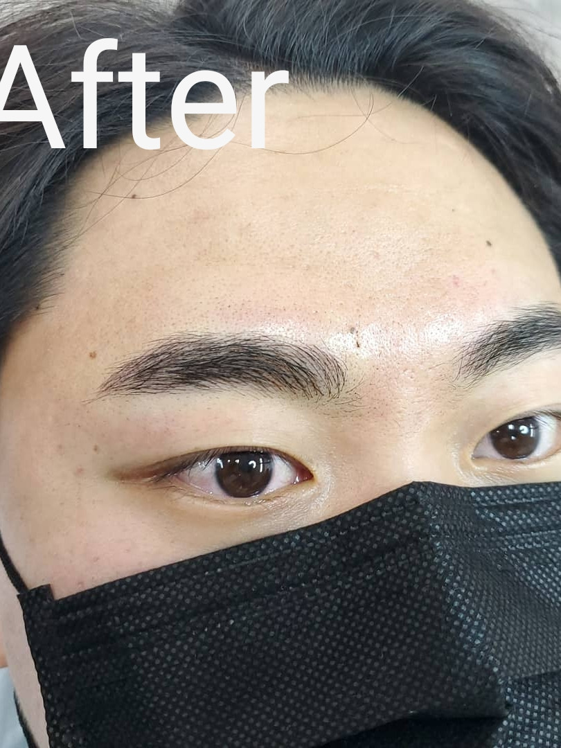 Male brow client - after