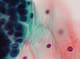 Copy of Demo cytology (1)_edited.png
