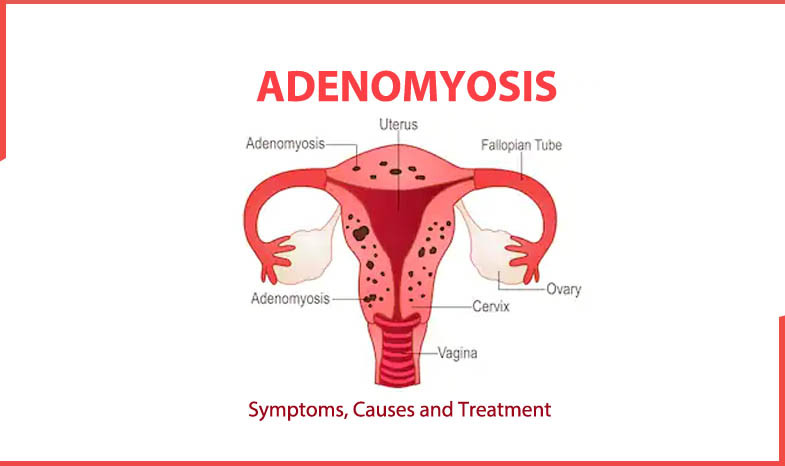Treating adenomyosis by Dr Adeline Chan female gynaecologist Sydney