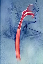 Barretts Esophagus