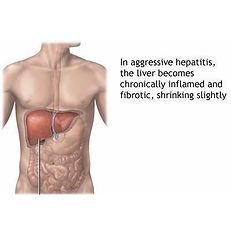 hepatitis treatment Decatur, GA