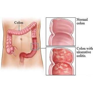 colitis treatment atlanta
