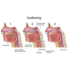 problems swallowing dysphagia