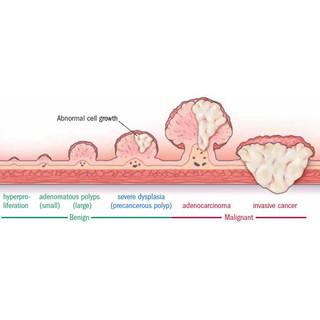 colon polyp progression atlanta endoscop