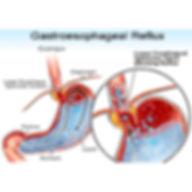 acid reflux GERD gastroesophageal reflux treatment atlanta
