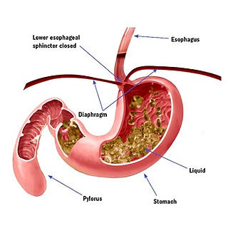 GERD heartburn atlanta endoscopy center.