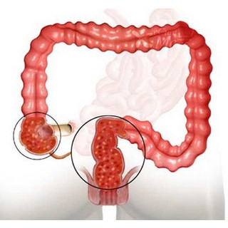 Ulcerative Colitis doctor near me