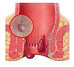 Hemorroides_Trombosadas_-_Dr._Manuel_Ale