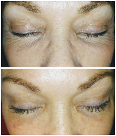 example of lash extensions