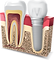 dental_implant.png