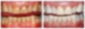 Teeth Whitening, Professional Teeth Whitening, Dental Office Teeth Whitening, Dentist Teeth Whitening