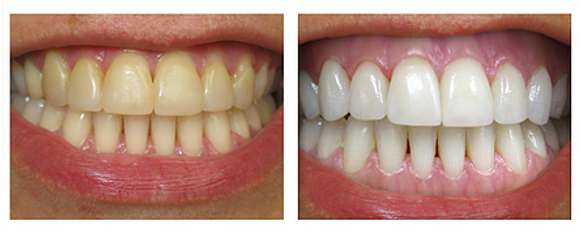 Teeth Whitening, Professional Teeth Whitening, Dental Office Teeth Whitening, Dentist Teeth Whitening