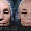 Thumbnail: 3 Laser Skin Resurfacing (Three For Me) Treatments