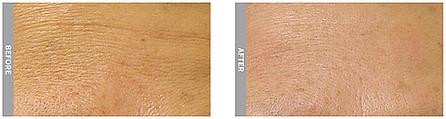 HydraFacial MD, Facial, Spa, Anti-aging, antiaging, wrinkles