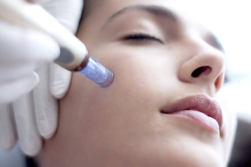 (2) Microneedling Treatments