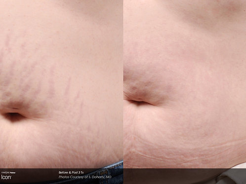 4 Laser Stretch Mark Removal Treatments