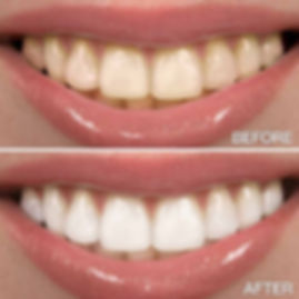 before-after-teeth-whitening.jpg