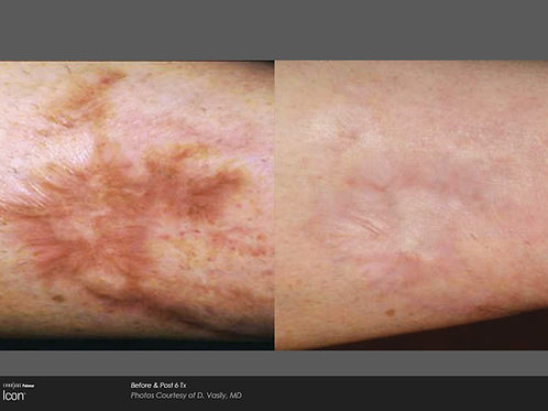 4 Laser Scar Removal Treatments
