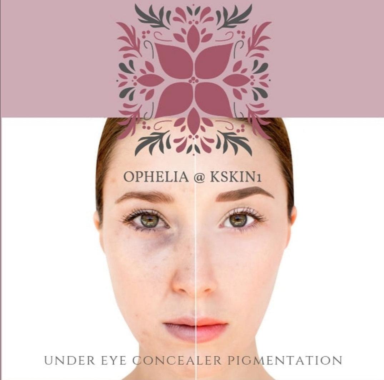 Under Eye Concealer Pigmentation