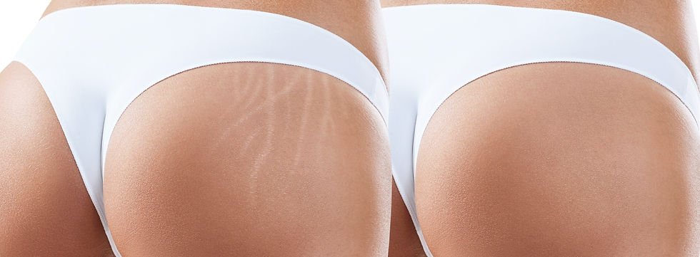 Female%20buttocks%20with%20stretching%20marks%20before%20and%20after%20treatment._edited.jpg