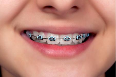 ortodoncia brackets.jpg