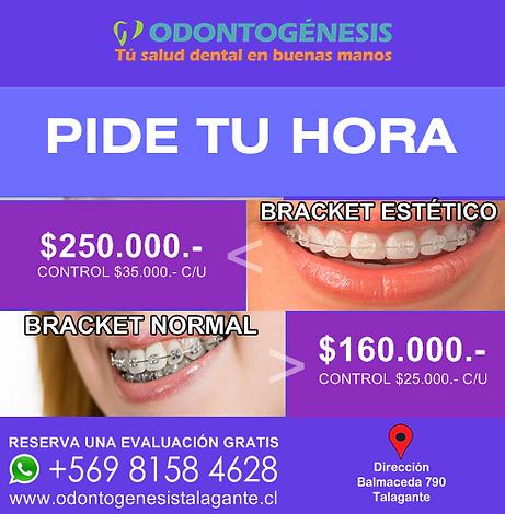 dentista-en-talagante-web-109.png