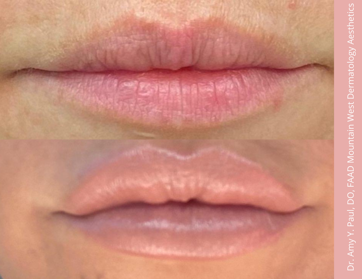 Lip Filler by. Dr. Amy Paul