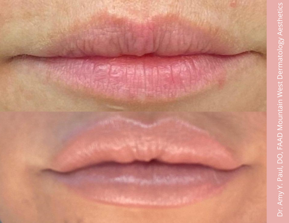 Lip Filler by. Dr. Amy Paul