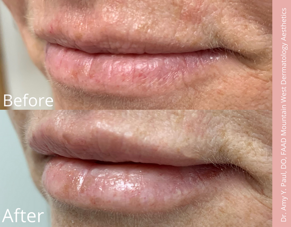 Lip Filler by Dr. Amy Paul