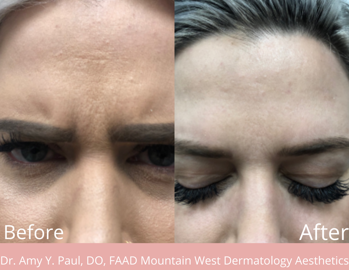 Botox Injections by Dr. Amy Paul
