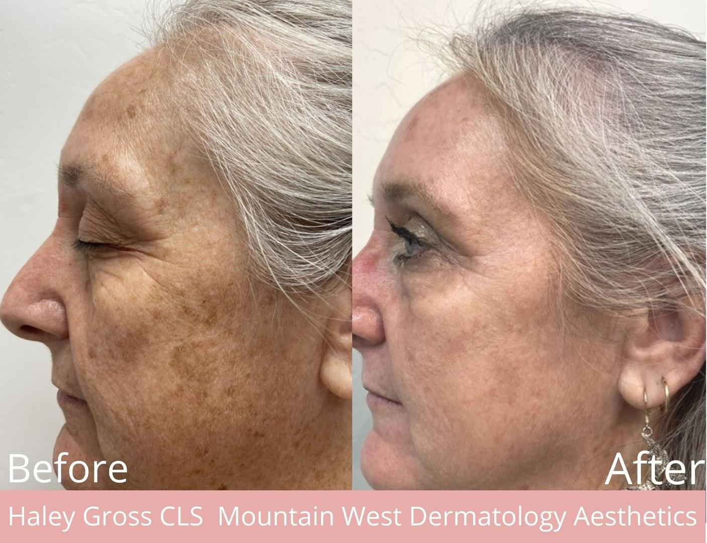 Skin Rejuvenation with AFT by Haley Gross CLS
