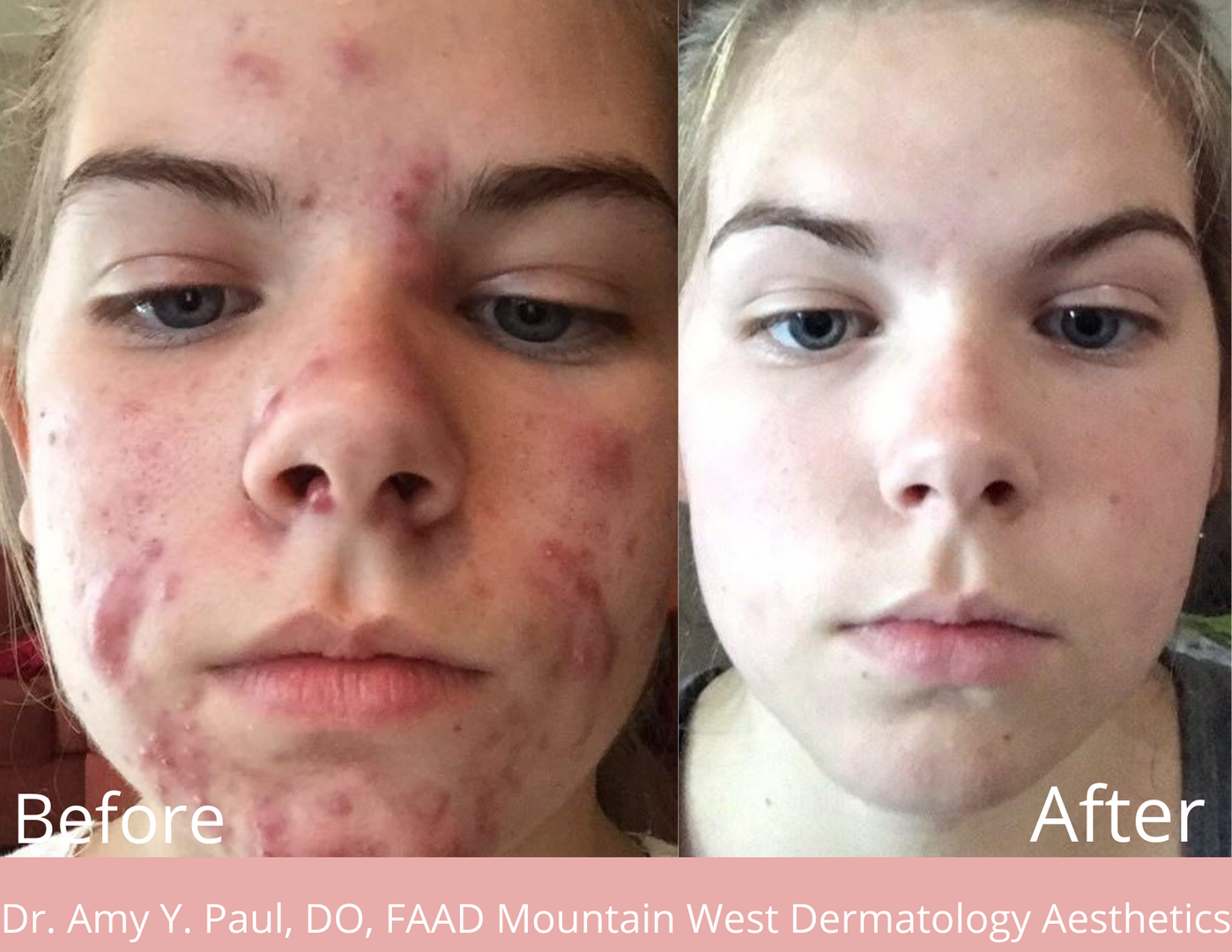 Acne Treatment by Dr. Amy Paul