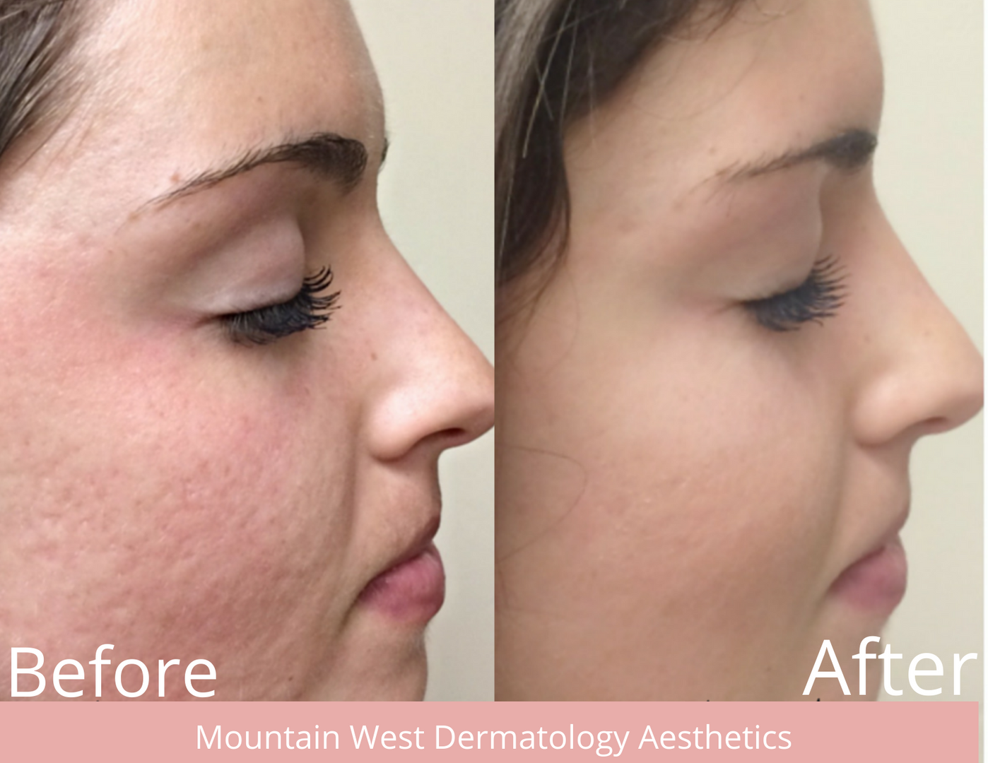 Medical Microneedling by MWDA