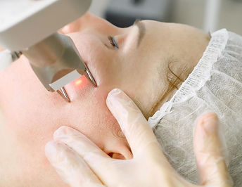 CO2 Laser Reserfacing at Mountain West Dermatology Aesthetics Grand Junction