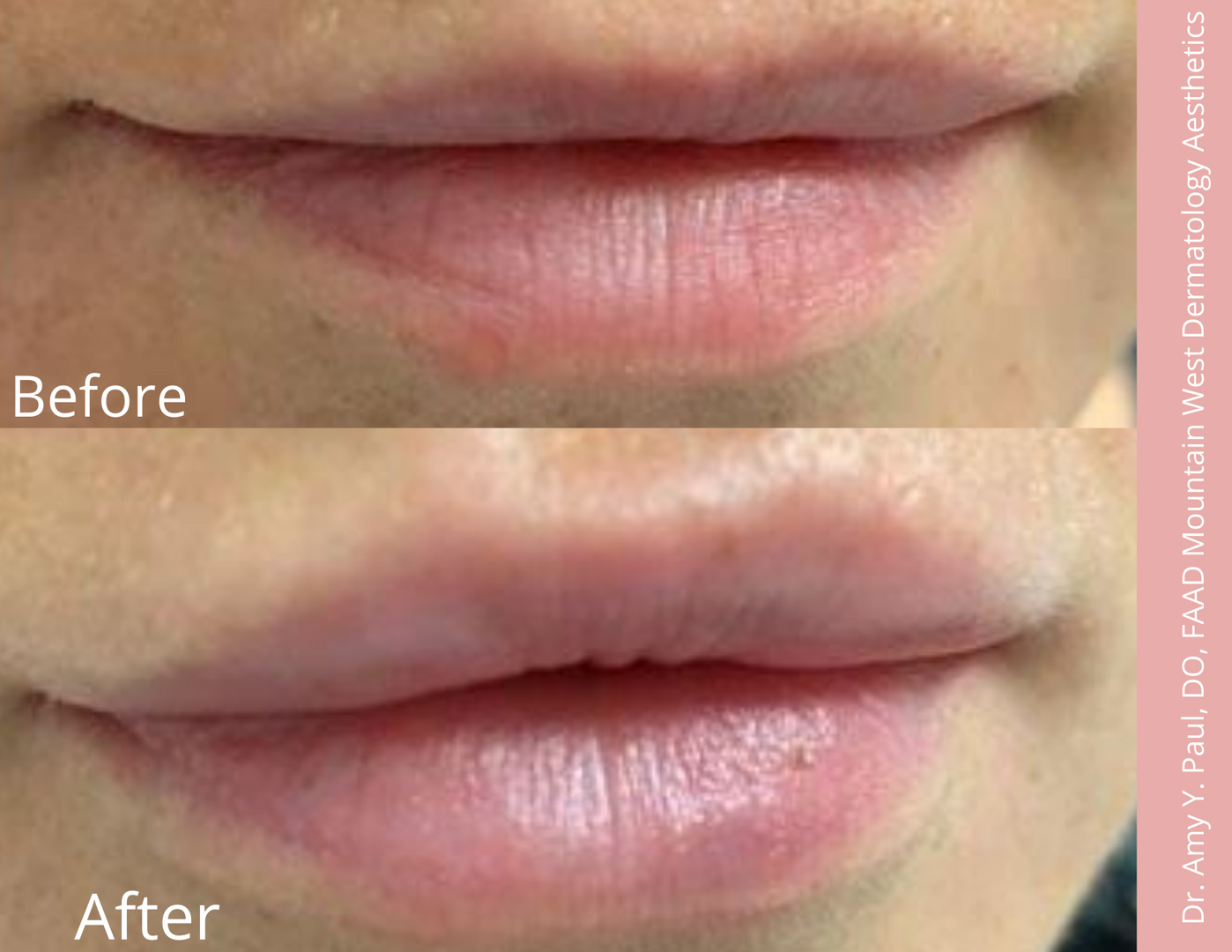 Lip Filler by Dr. Amy Paul