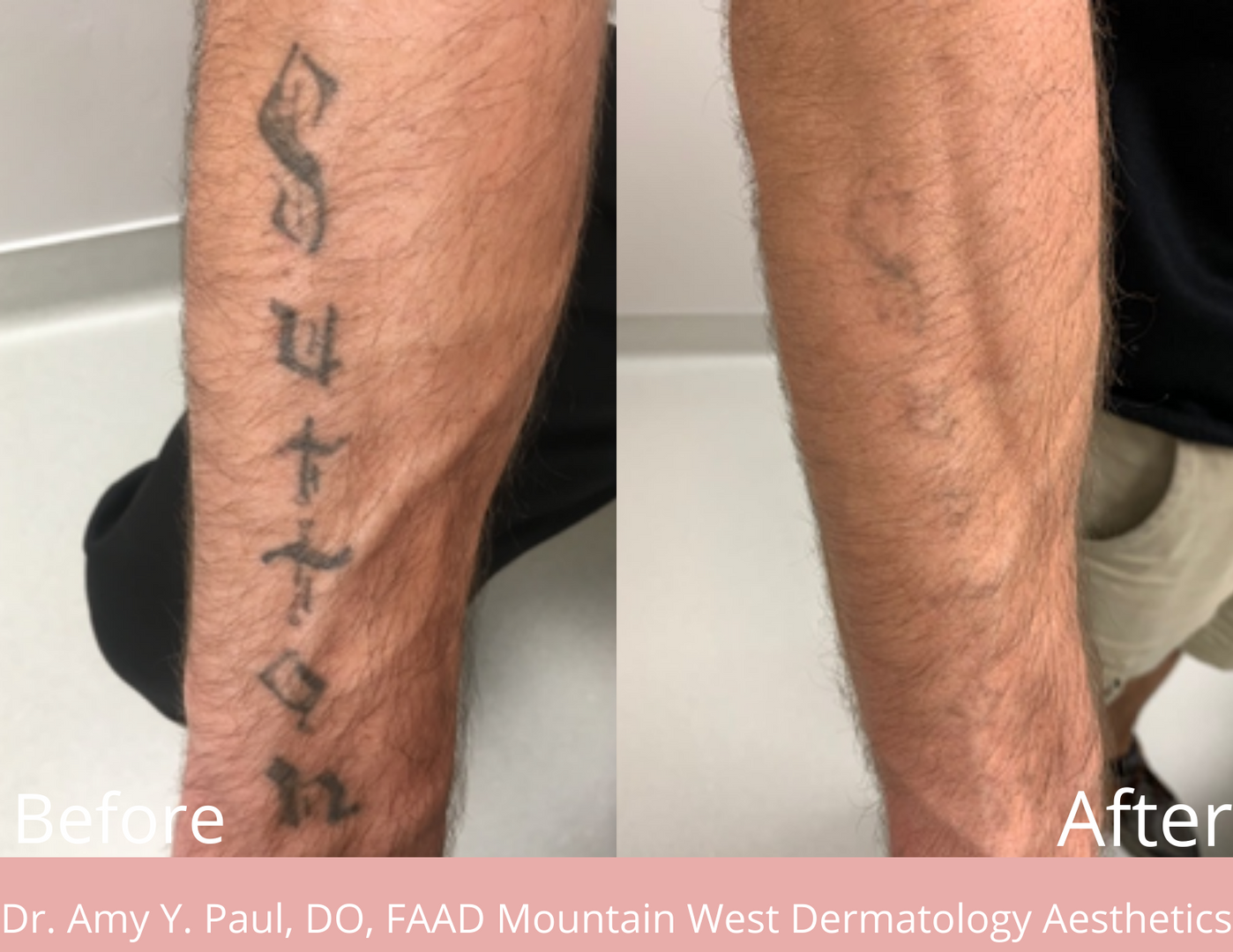 Tattoo Removal by Dr. Amy Paul