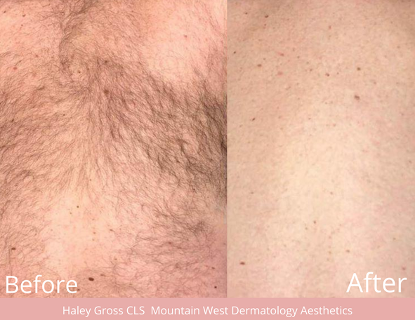 Laser Hair Removal by Haley Gross CLS