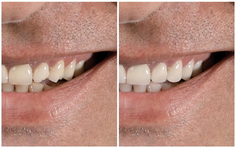 Zähne: vorher und nachher