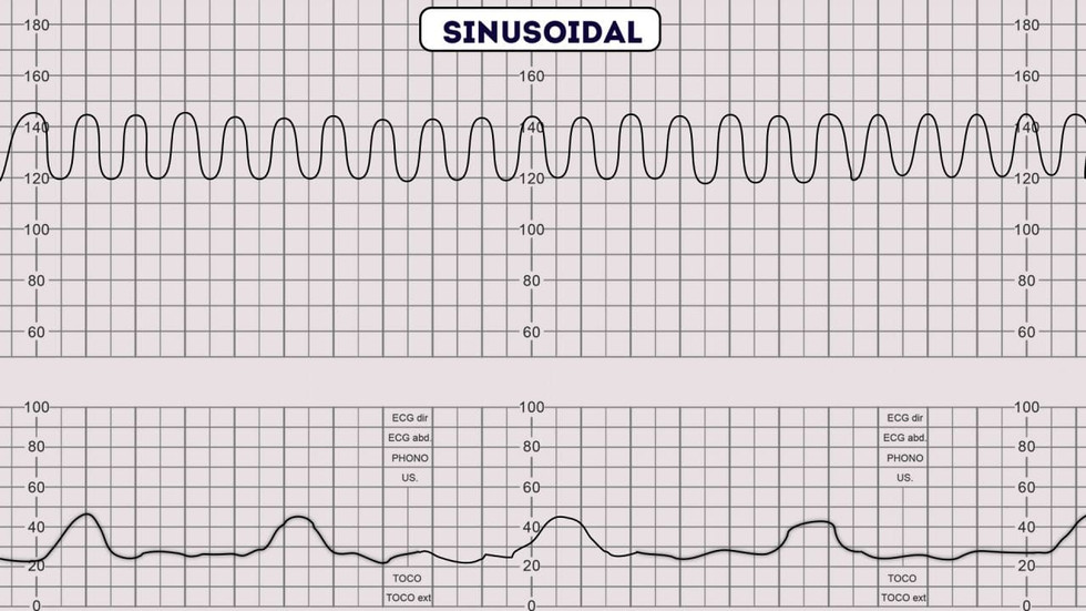 Patrón sinusoidal