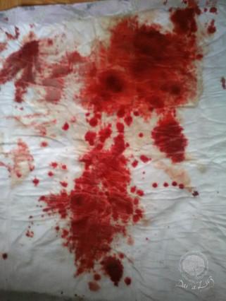 Dar a Luz en Casa Aborto Ana sangre.jpg