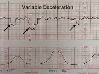 Deceleración variable
