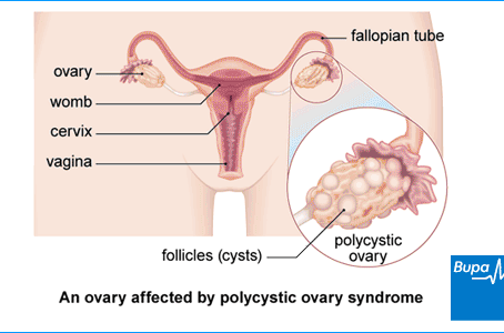 What Causes Polycystic Ovaries?