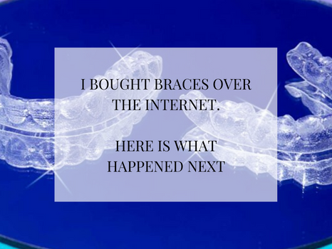 I bought 'Invisible' braces over the internet - Here is What Happened