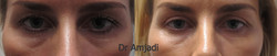 DrAmjadiBleph004